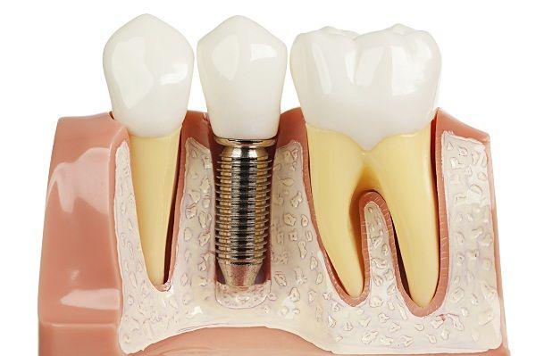 Những nguy hiểm khi làm cầu răng sứ thẩm mỹ 1