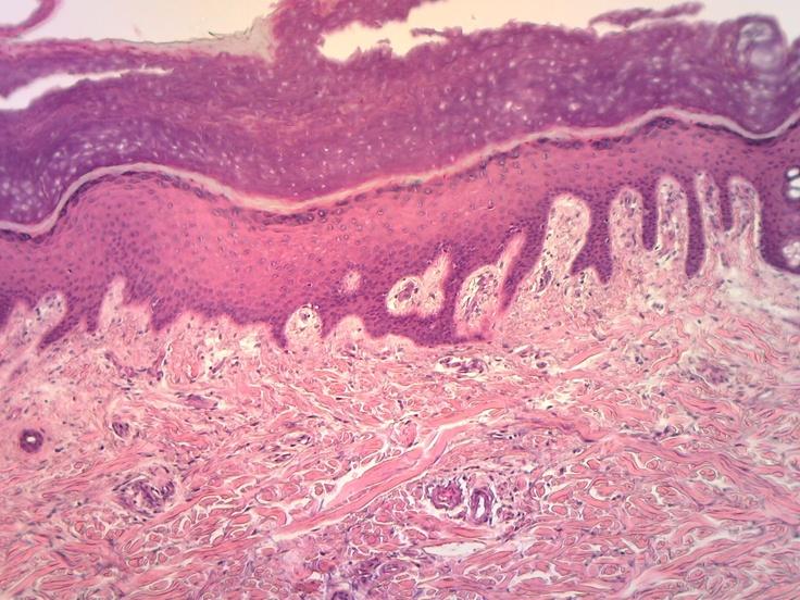 Skin Slide: Keratinized Stratified Squamous Epithelium, Areolar Connective Tissue, Dense Irregular Connective Tissue, Adipose, Smooth Muscle (Arector Pili), Glandular Epithelium (Sweat & Sebaceous Glands)