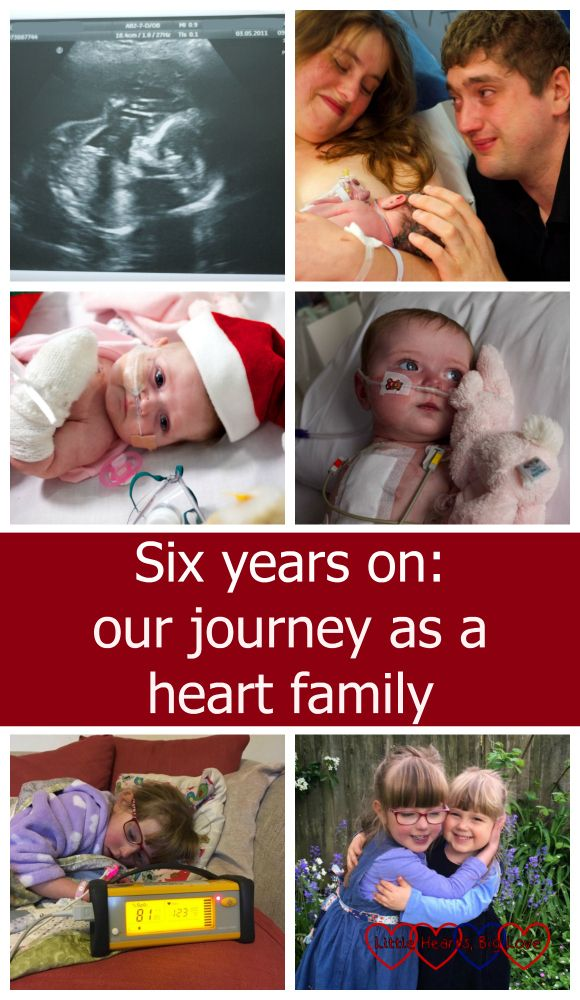 Six years ago a 20 week scan changed our lives completely. Looking back and reflecting on six years of being a heart family.