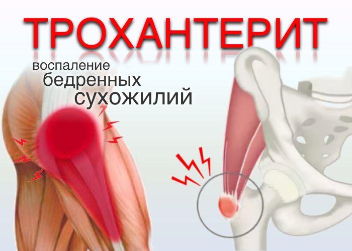 doclvs.ru | Воспаление бедренных сухожилий (трохантерит): причины ...