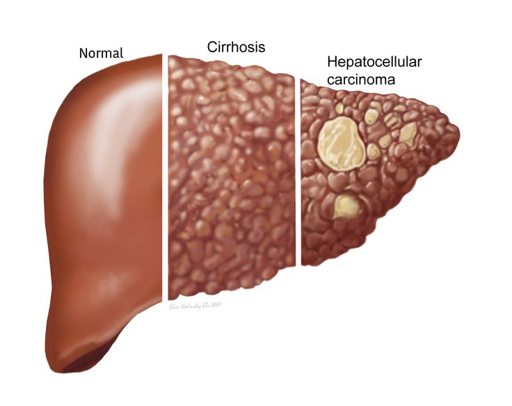 Hemochromatosis - Causes of Hemochromatosis - Hemochromatosis Symptoms - Hemochromatosis Treatment | Canadian Liver Foundation
