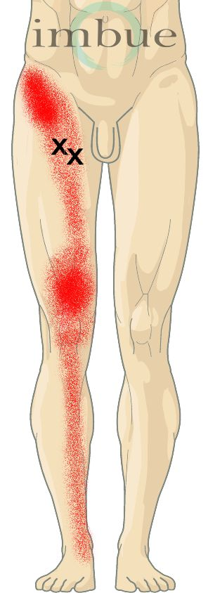 Front and Inner Thigh Pain | Adductor Longus and Adductor Brevis: These muscles run from the bottom of the pelvis to the upper, rear surface of the thigh bone. Contracting these muscles brings the thigh toward the midline of the body (adduction). The X's in this diagram show the general location of trigger points that form when this muscle is irritated.
