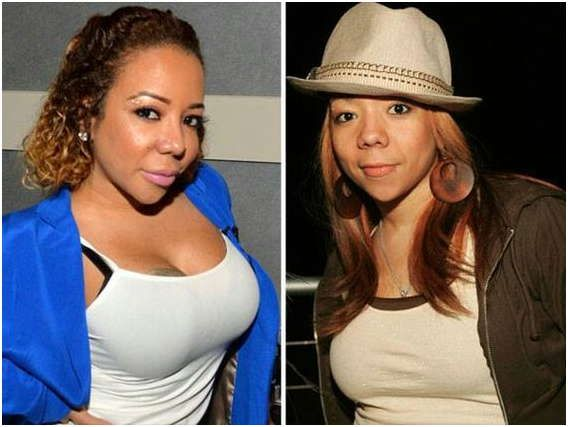 Tameka Cottle Plastic Surgery Before & After    Tameka Tiny Cottle Plastic Surgery