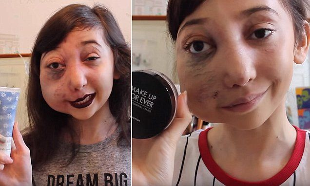 Beauty vlogger, 11, with facial disfigurement becomes YouTube star
