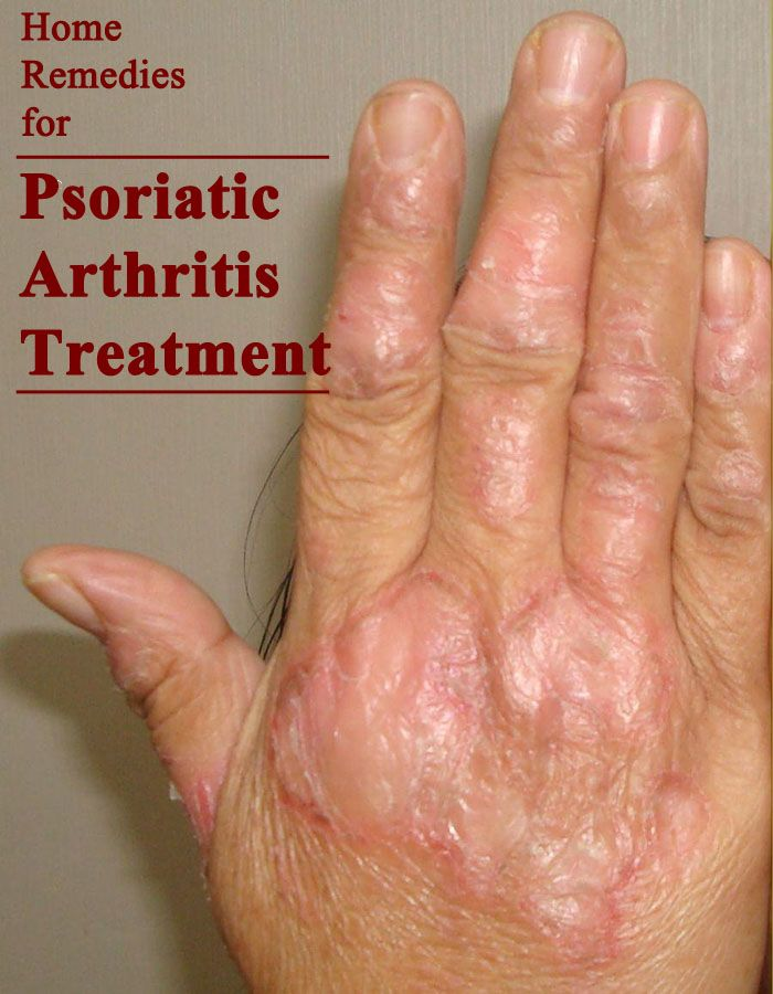 Home Remedies for Psoriatic Arthritis Treatment