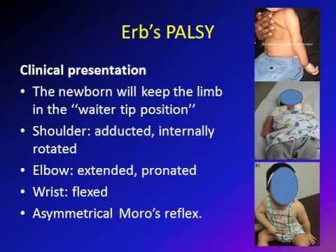 Obstetric Brachial Plexus Palsy (OBPP)/ Erb's Palsy - YouTube