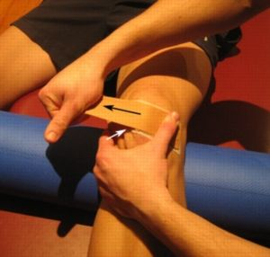 Another patella taping technique