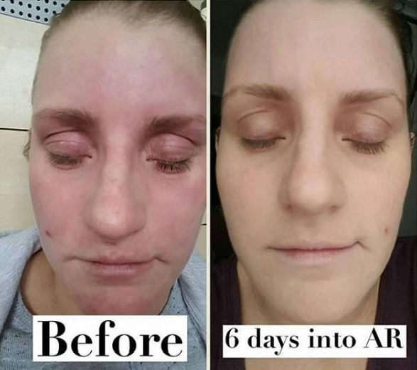 "Kate, 26. On Aron Regimen for 6 days. ""I cannot believe my eyes when I compare the two pictures, so grateful and thankful to Dr Aron. I now say to myself why didn't I do this sooner? Happy healing!"""