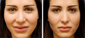 Ethnic Rhinoplasty Before & After Images | Los Angeles, Beverly Hills