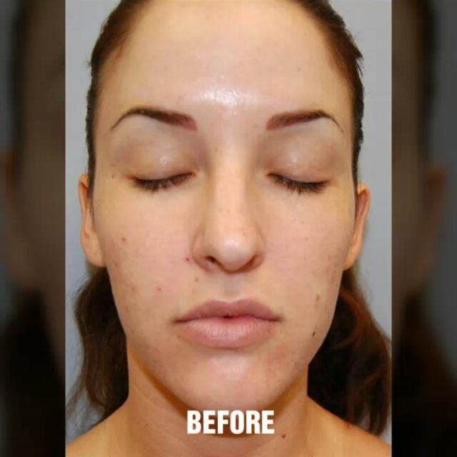 Dr Richard Chaffoo Drchaffoo Instagram Photos And Videos Rhinoplasty Plastic Surgery Video Cost Of Plastic Surgery