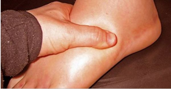 Water retention or also known as edema is the accumulation of fluids in the tissues and cavities as well as the circulatory system. This can cause swelling in the feet, hands, ankles, and legs, and it usually appears to women during pregnancy or the period before. It can also occur at people who are not […]