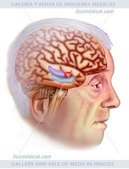 Cerebro afectado por alzheimer ilustración. Ilustración en al que podemos ver una persona anciana con ...