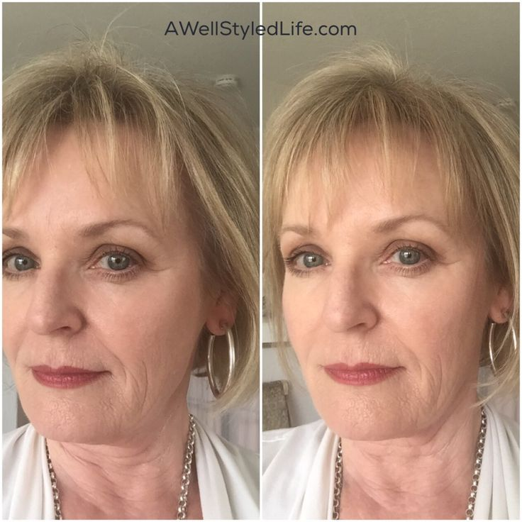 Real Help for Thinning Hair in Women Over 50                                                                                                                                                                                 More