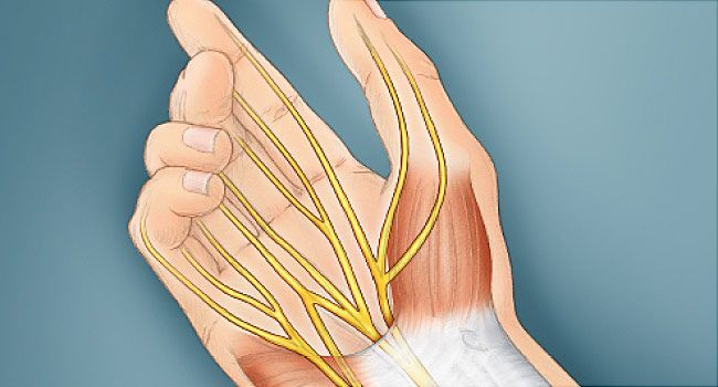 Curing Tendonitis Naturally