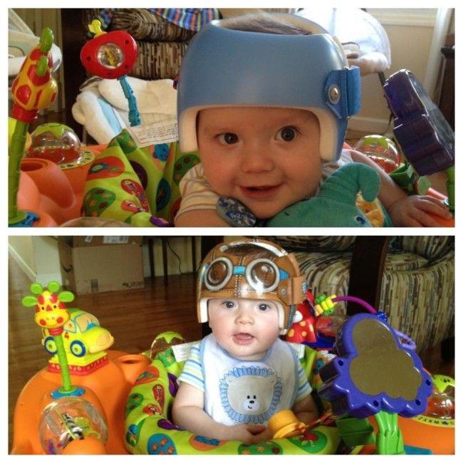 Mamá convierte cascos ortopédicos de bebé en divertidas obras de arte ¡Fotos! - Blog de BabyCenter