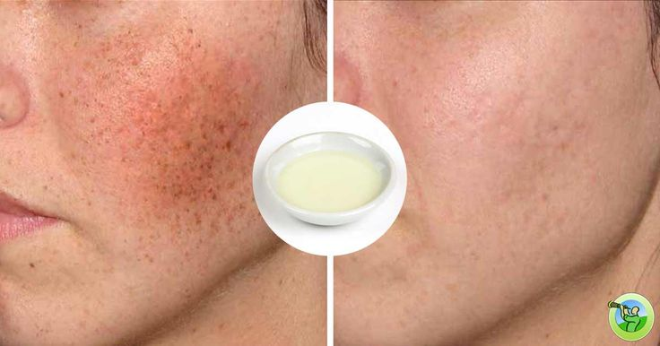 Do you have problems with your skin? You are not alone, a lot of people have dark patches or black spots and other different spots on their face.    This can occur due to excess secretion of