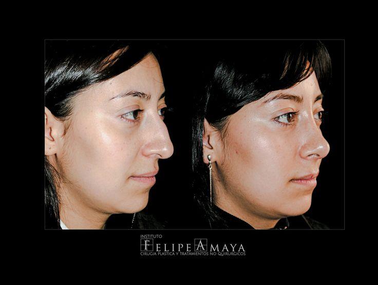 La cirugía de nariz, una de mis favoritas www.felipeamaya.com/cirugia-nariz/ #InstitutoFelipeAmaya #CambiaTuFotodePerfil