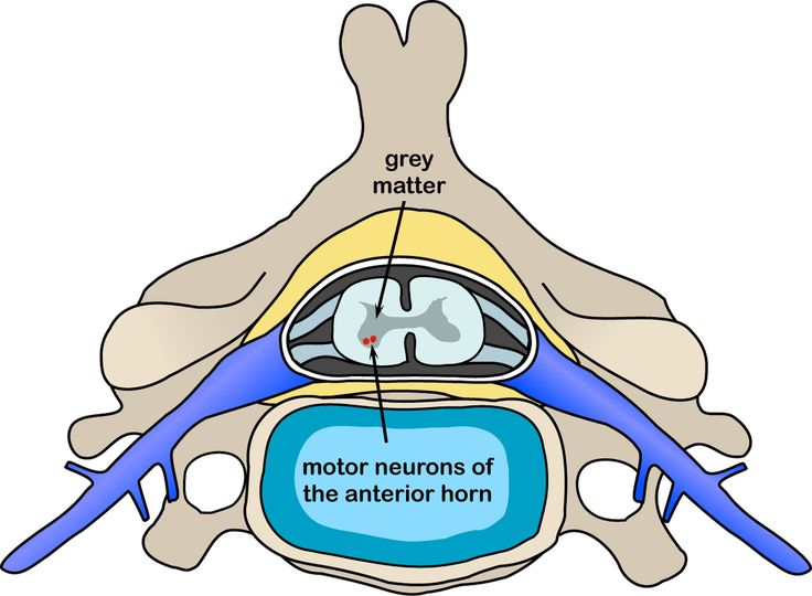 Motor neuron disease - Wikipedia