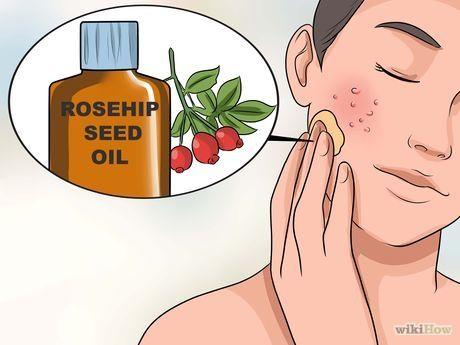 Bildtitel Get Rid of Large Pores and Blemishes Step 12