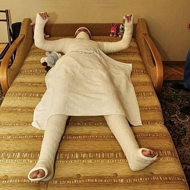 Смешная картинка человека в гипсе