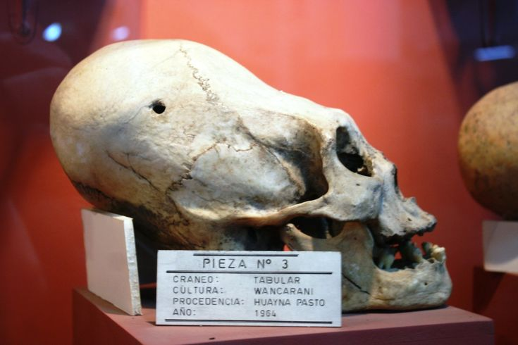 DNA Results For The Elongated Skulls Of Paracas: Part 2 Of 4: La Oroya