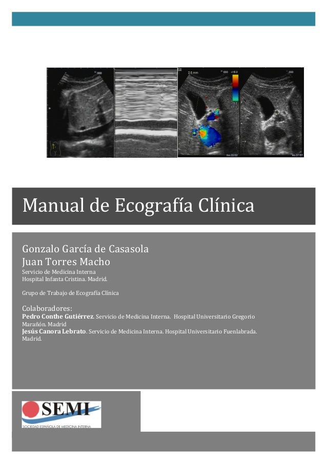 Manual de ecografia