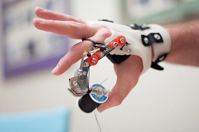 Cheaper prosthetic finger prototype could be a blessing to many | Ubergizmo