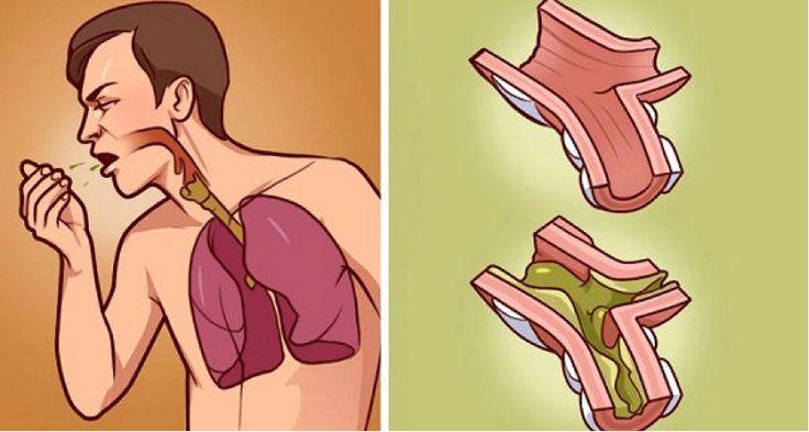 Když se vaše plíce topí v hlenech, toto je nejlepší lék: 100% přírodní a rychlý!  