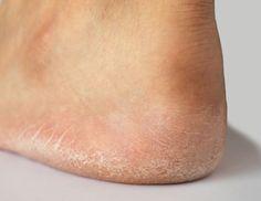 Signes que vous avez un problème de thyroïde et choses que vous pouvez faire