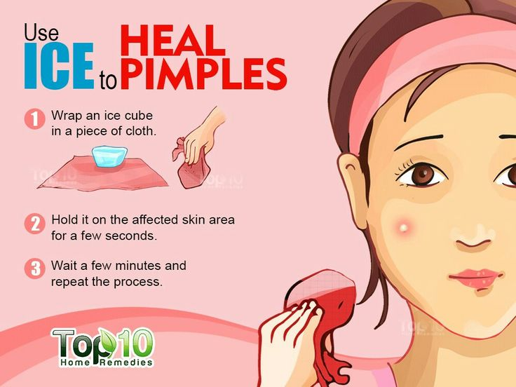 22 Home Remedies for Acne & Pesky Pimples | How to remove