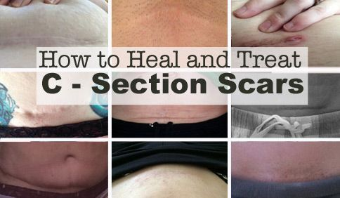 How to Heal and Treat C-Section Scars - Mama Lion Strong