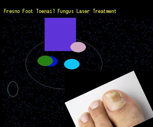 Fresno foot toenail fungus laser treatment - Nail Fungus Remedy. You have nothing to lose! Visit Site Now