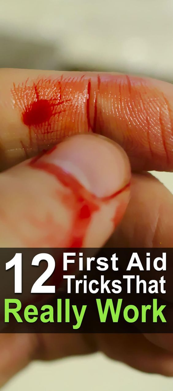12 First Aid Tricks That Really Work
