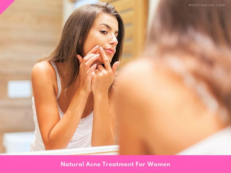 Natural #Acne Treatment For #Women
