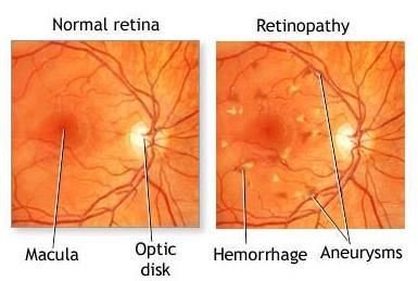 Diabetic Retinopathy  http://www.macfarlaneoptometrist.com.au/Diabetic-Retinopathy