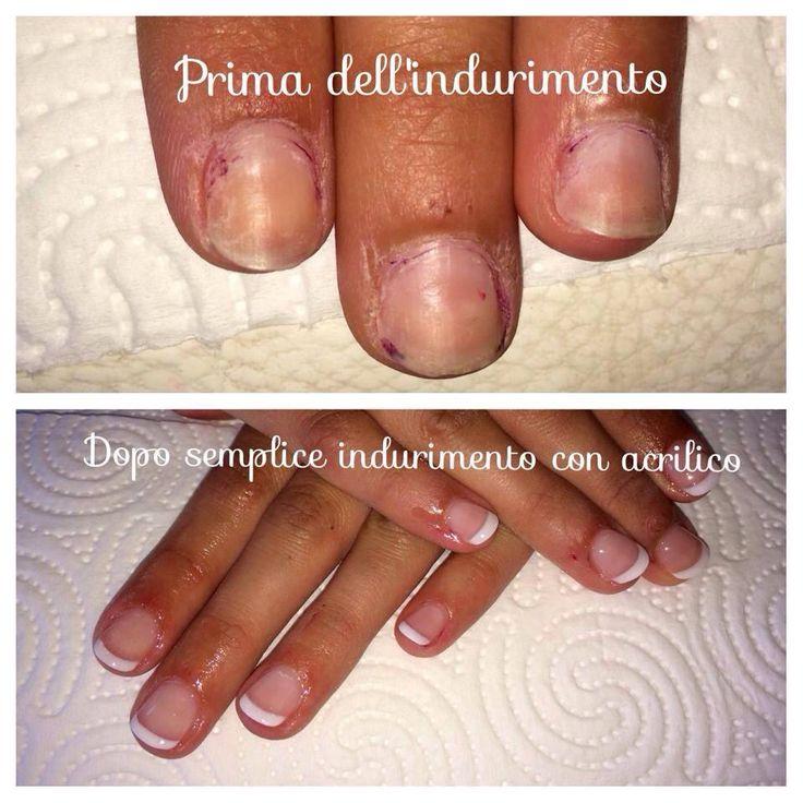 Indurimento delle unghie naturali in acrilico.    #nails #nail #unghie #gel #acrilco #french