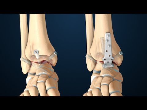 Ankle Fusion Surgery (Arthrodesis) This 3D medical video depicts the anatomy and function of the ankle joint, as well as the common reasons for having an ankle fusion surgical procedure. A brief overview of what happens in an anterior ankle fusion surgical procedure is shown. By: Nucleus Medical Media.