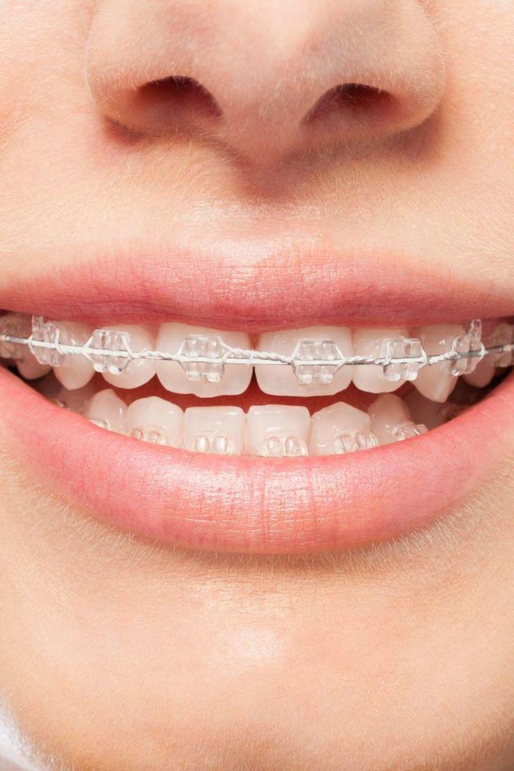 Pin on Delta Dental Ppo