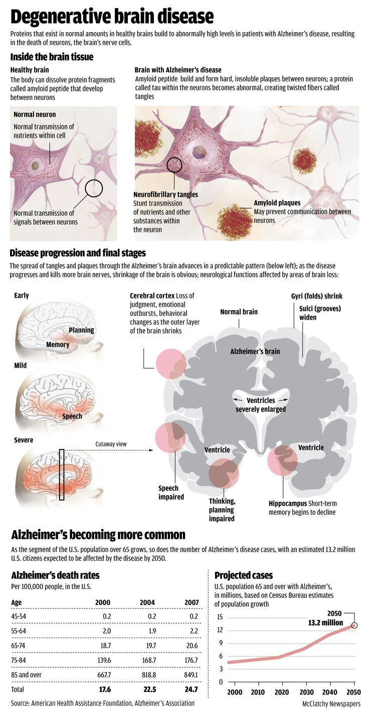 an analysis of alzheimers disease in neurology Sabrina d phillips, md, mayo clinic cardiologist specializing in adult congenital  heart disease, reviews the importance of ongoing cardiac care for adults who.