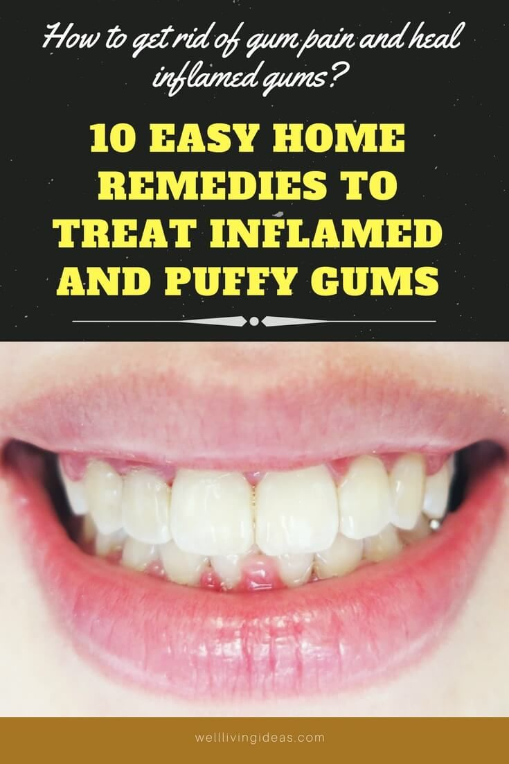 10 Easy Home Remedies to Treat Inflamed and Puffy Gums