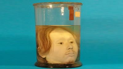 The very well preserved head of Diogo Alves, a Portuguese serial killer who was sentenced to death in 1841
