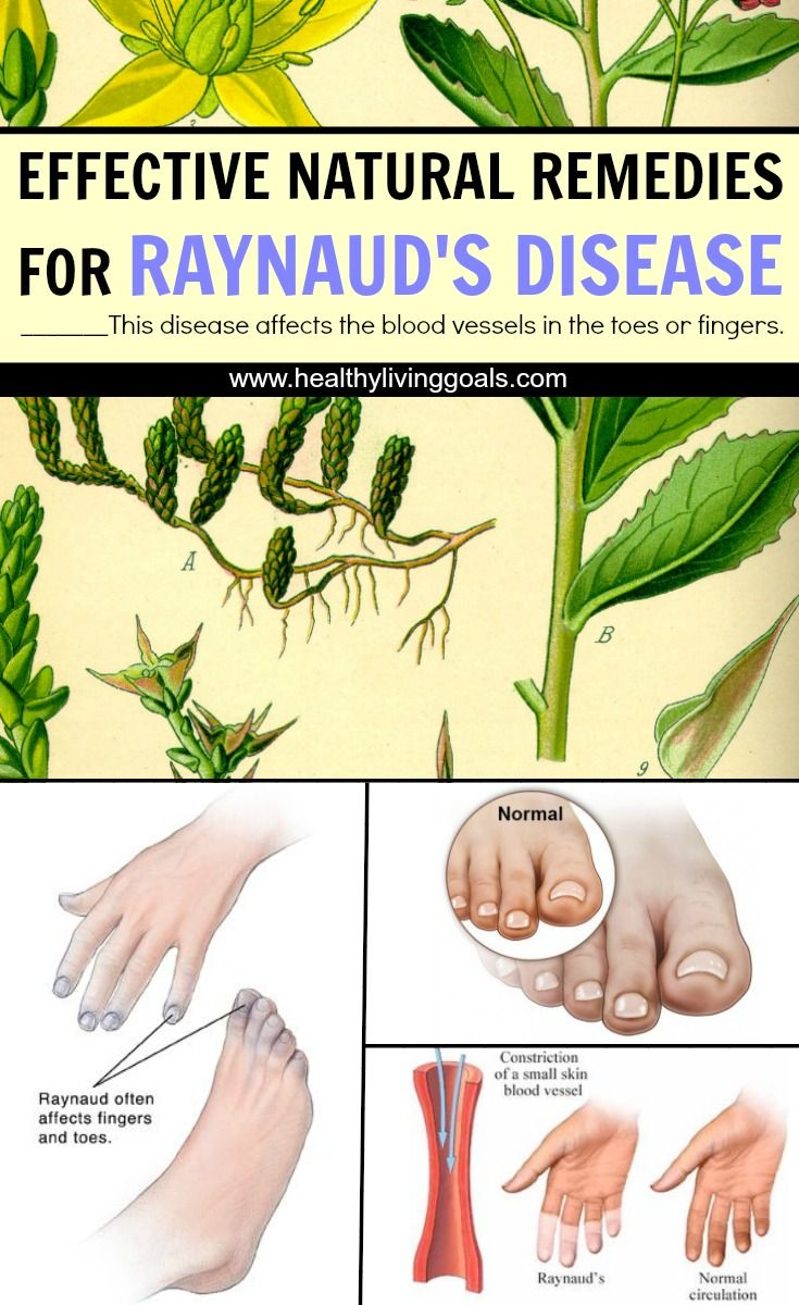 Effective Natural Remedies for Raynaud's Disease -  This disease affects the blood vessels in the toes or fingers.