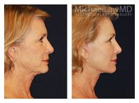 Facial Fat Grafting Patient 2 Before and After 6 months. Beautiful and Natural looking results by Dr. Michael Law. For more info call (919) 256-0900 or visit   http://www.michaellawmd.com/rejuve.html  #fatgrafting #facialfatgrafting #plasticsurgery #plasticsurgeon #bestplasticsurgeon #bestplasticsurgery #raleighplasticsurgeon #michaellawmd #mlmd #bluewaterspa #bluewatersparaleigh #plasticsurgerybeforeandafter #beforeandafter #photos #postop #6months #naturalresults #bestresults
