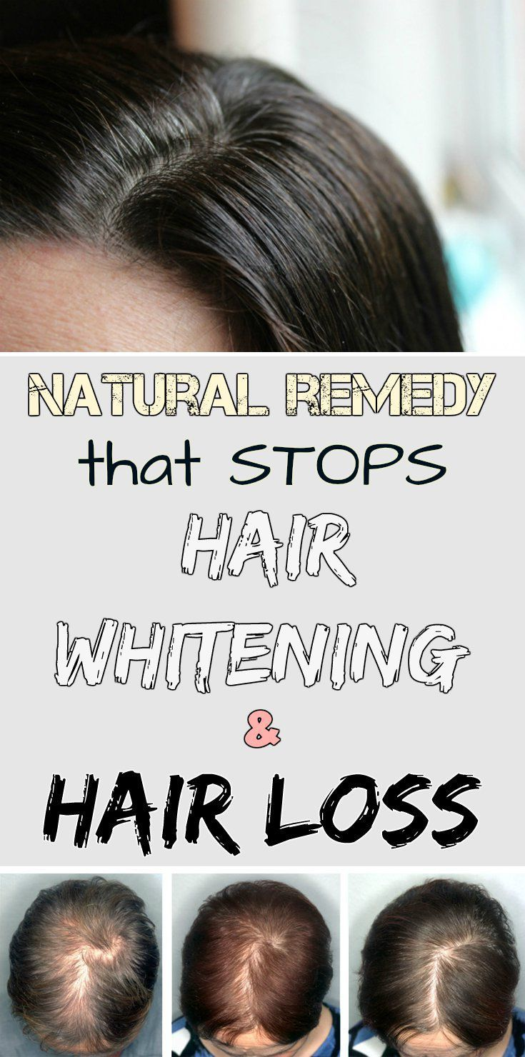 Natural remedy that stops hair whitening and hair loss-READ MORE >>