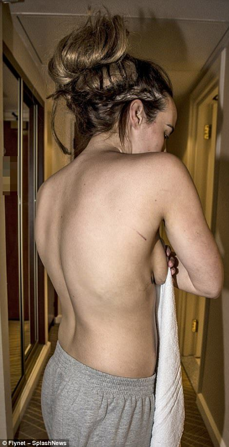 Stephanie Davis - Unveiling the extent: Ghastly cuts and bruises are also visible on her back