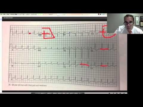 EKG EMS lecture part 3 - YouTube