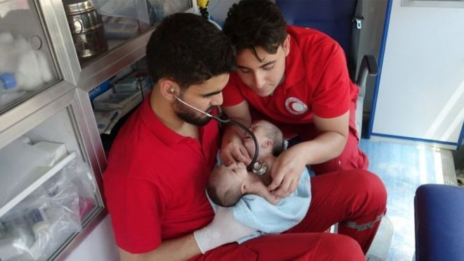 Conjoined Twins Born in Syria War Zone - https://wp.me/p7bxg1-25E