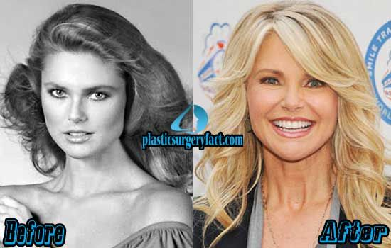 Christie Brinkley Before and After Photos | http://plasticsurgeryfact.com/christie-brinkley-plastic-surgery-before-and-after-photos/