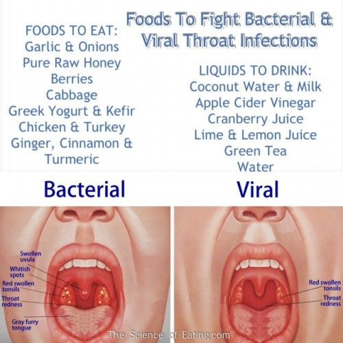 Are you wondering what's causing your sore throat? Strep throat, is a particularly severe form of sore throat that is caused by a bacterial infection. But most sore throats are caused by viral illnesses and are not responsive to treatment with antibiotics. Here are some foods that are capable of treating both!