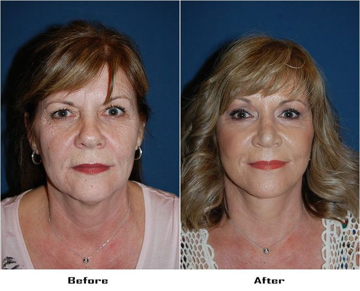 #blepharoplasty #resurfacing #rhinoplasty #procedu…